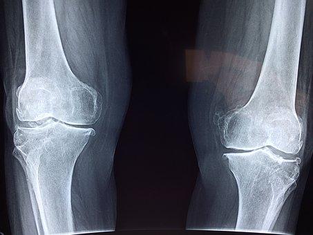 Zdravlje kostiju i zglobova